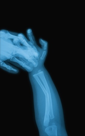 X-ray image of child hand holding mothers hand