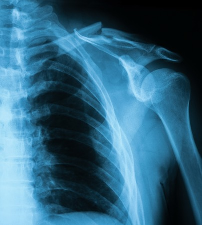 X-ray image of clavicle fracture. AP view.