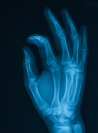 X-ray image of hand, oblique view, Showing index finger fracture,