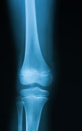 X-ray image of knee joint, AP view.