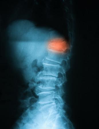 luxacion: Imagen de rayos X del seno TL, vista lateral. Mostrando fractura por compresión en T12
