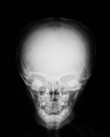 Baby Skull X-ray Image. Stock Photo, Picture And Royalty Free Image ...