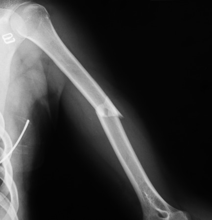 humerus: x-ray image of humerus, lateral view. Shows humerus fracture.