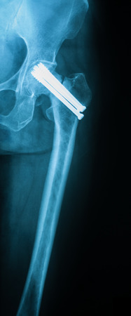 femoral: X-ray image of femoral neck fracture, AP view, Immediate postoperative .