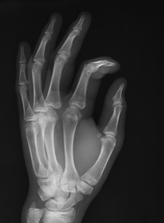 X-ray imag of han, obligue view.