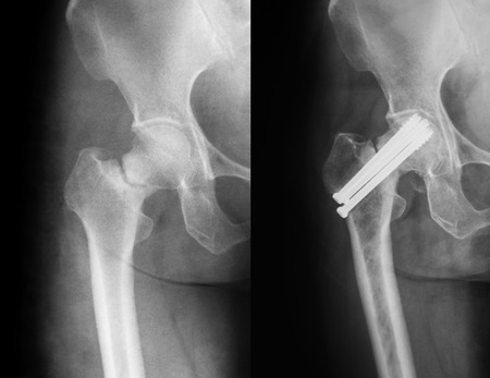 X-ray image of hip joint, preoperative and postoperative. Banco de Imagens