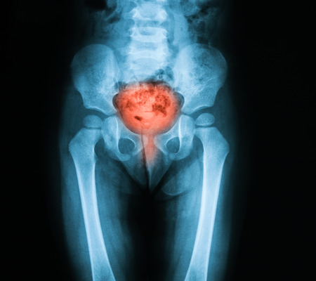 cystitis: X-ray image of bladder, Showing cystitis or lower urinary tract infection