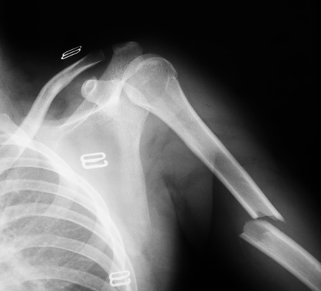 humerus: X-ray image of humerus fracture, AP view.