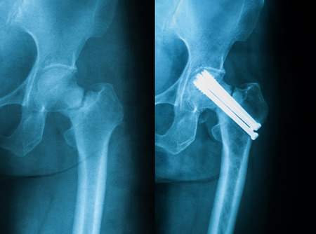 nack: X-ray image of femoral nack fracture, AP view. preoperativelefe and postoperativeright.