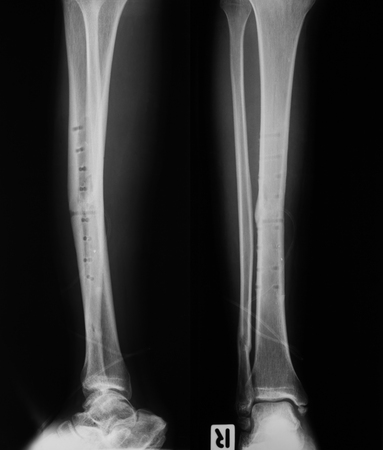 X-ray image of leg fracture, AP and lateral view: After removed internal fixator plate and screws Banco de Imagens