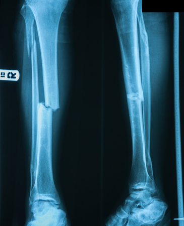 X-ray imag of leg,  AP and lateral view, Show repeate fracture site after removed internal fixator.