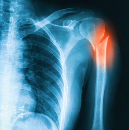 extremity: X-ray image of shoulder AP view. Showing  hemeral fracture.
