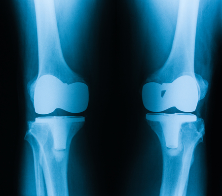 knee: X-ray image of knee, AP and lateral view. showing total hip replacement. Stock Photo