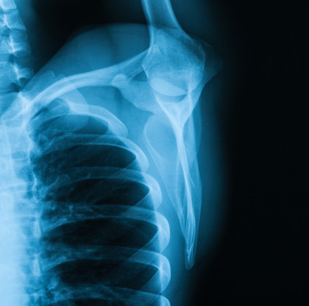 X-ray image of Shoulder , transcapula or y view.