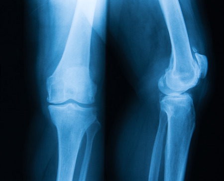 knee cap: X-ray image of knee, AP and lateral view. showing  arthritis of the knee