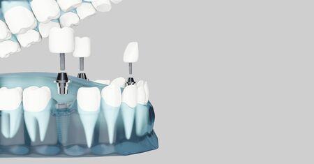 Component of Dental implants and copy space. Blue color transparent. 3d illustrations Stock fotó