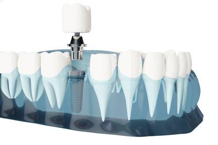 Close up Component of Dental implants. Blue color transparent. 3d illustrations