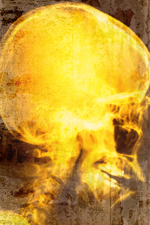 roentgenograph: X-ray head of human overlap on old wall textured background. retro filter.