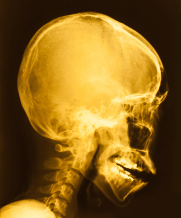 radiological: film X-ray image of head Stock Photo