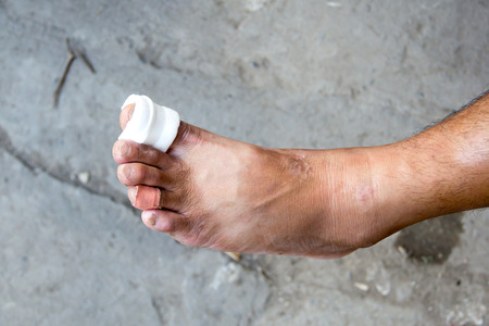 ulcers: Gauze bandage the foottreating patients with foot ulcers Stock Photo