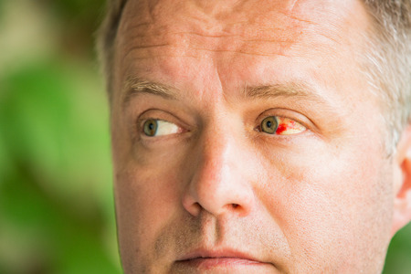 Close up of man with broken blood vessel in eye. Subconjunctival bleeding Stock Photo
