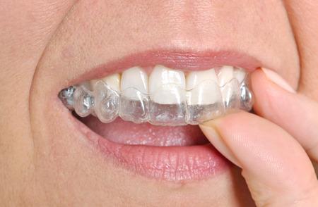 dentier: Femme mettant dans ses accolades invisibles Banque d'images