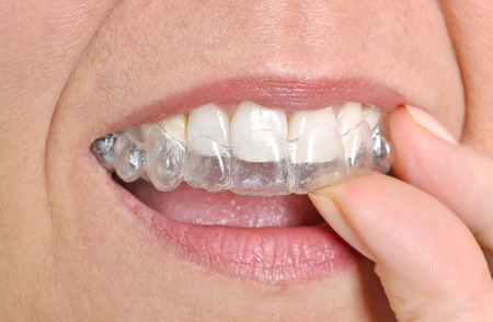 Woman putting in her invisible braces Stock Photo