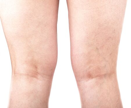 Female legs with varicose veins on the back of the legs. Healthy lifestyle.
