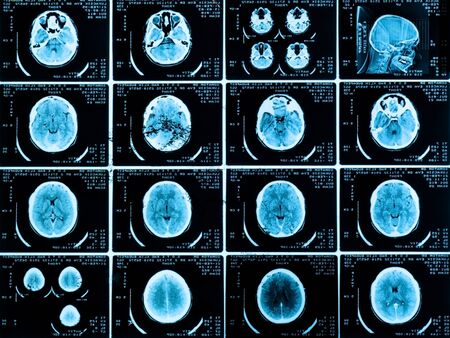 Closeup of a CT scan with brain and skull on it Stock Photo - 9485658