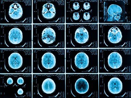 enfermedades mentales: Detalle de una tomograf�a computarizada con el cerebro y el cr�neo en �l