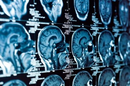 Close-up van een CT-scan met hersenen en schedel op het