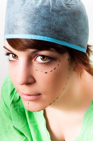 Drawn lines on a young woman face as marks for facial plastic surgery photo