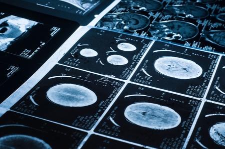 enfermedades mentales: Varios CT equipo an�lisis im�genes de tomograf�a del cerebro