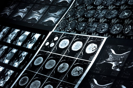Several CT computer tomography scan images of neck and brain Stock Photo - 9486310