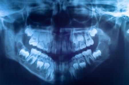 Closeup of the human skull photo