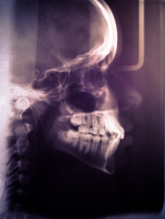 ct scan: Human skull scan closeup Stock Photo
