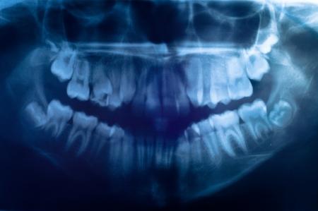 ct: Closeup of the human skull Stock Photo
