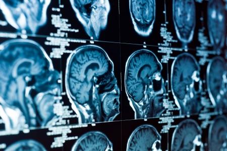 Primer plano de una tomografía computarizada con cerebro y el cráneo en él