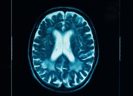 maligno: aguda TC del cerebro humano