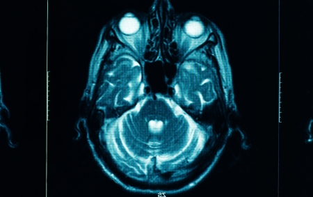 sharp ct scan of the human brain photo