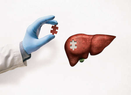 Puzzle with illustration of liver and doctor's hand with the missing piece of puzzle. Liver treatment concept.