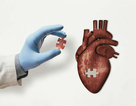 Puzzle with illustration of human heart and doctor hand with the missing piece of puzzle. Heart treatment concept.