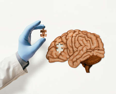Puzzle with illustration of human brain and doctor hand with the missing piece of puzzle. Brain treatment concept.