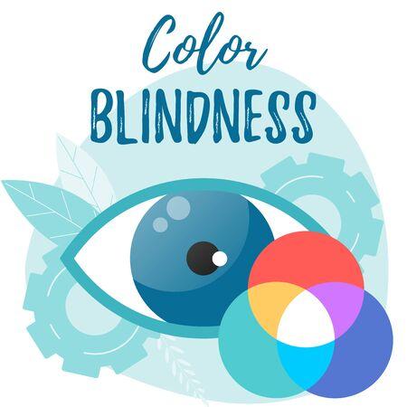 Color blindness vector flat concept. Daltonism. Optometry, ophthalmology vector flat illustration. Foto de archivo - 136759758