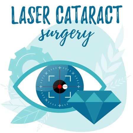 Laser cataract surgery illustration. Refractive lens exchange concept. Vector flat web banner Ilustrace