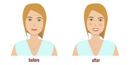Face of a woman before and after facial treatment vector