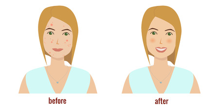 Womans face with skin problems before and after skin treatment vector illustration