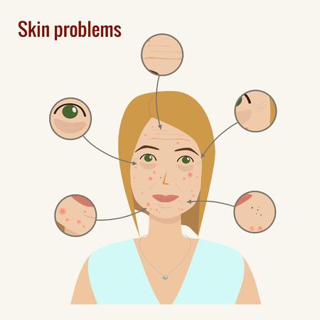 Cara de mujer con problemas de piel ilustración vectorial