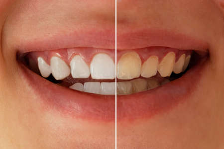 Teeth whitening before after. Woman teeth before and after whitening. Dental health concept. Oral care concept