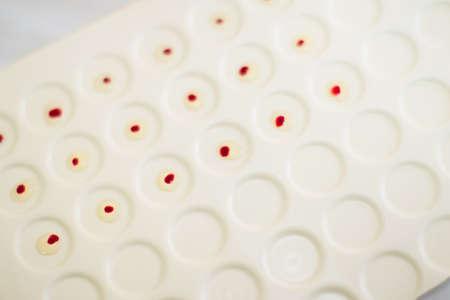 Blood test. Drops of blood on a medical tablet